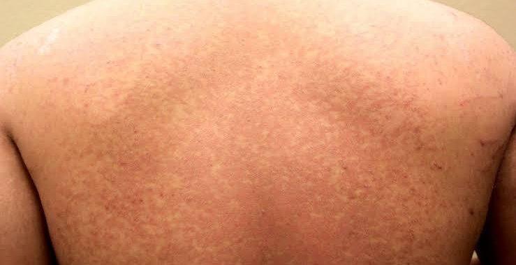 Manchas na pele e micoses de verão
